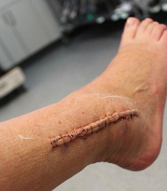 Хирургический шов, после сложной операции на голеностопе