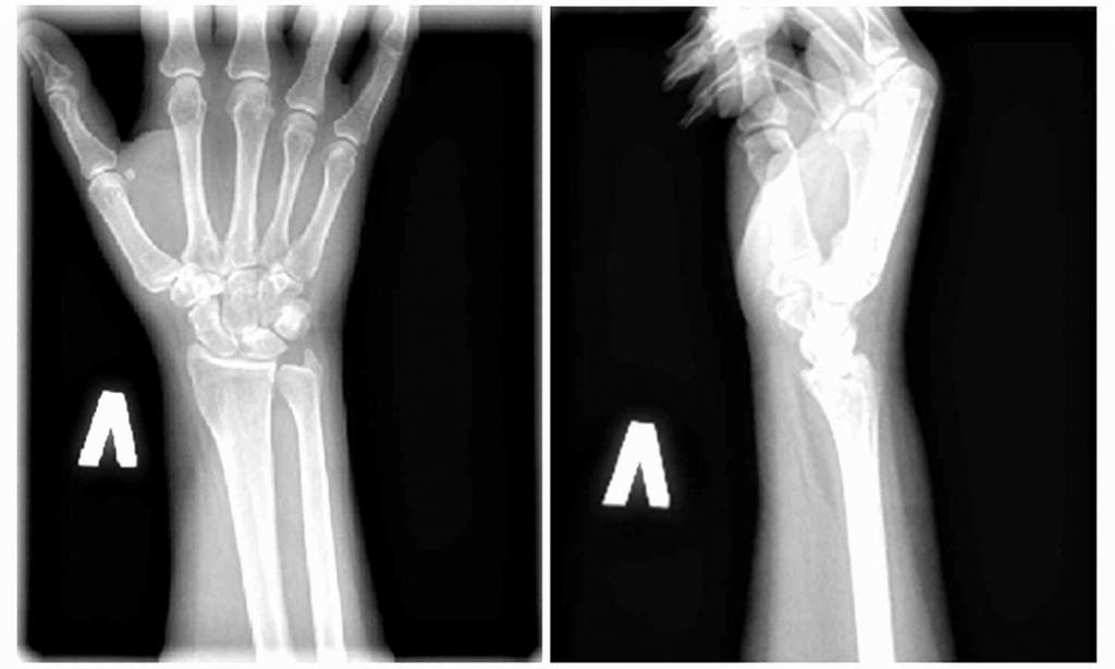 Вывих ладьевидной кости