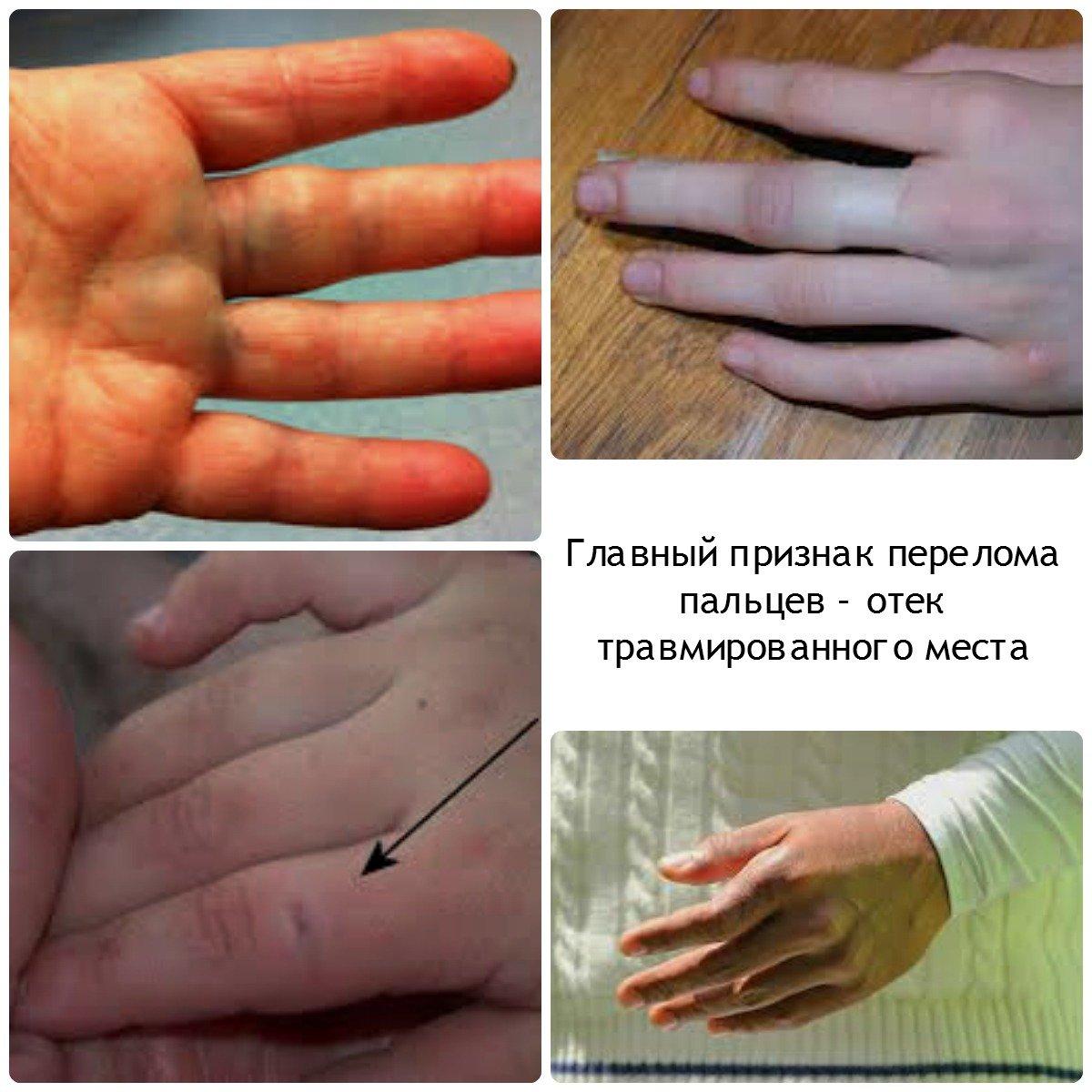 Сустав пальца руки травмирован назвоние суставов