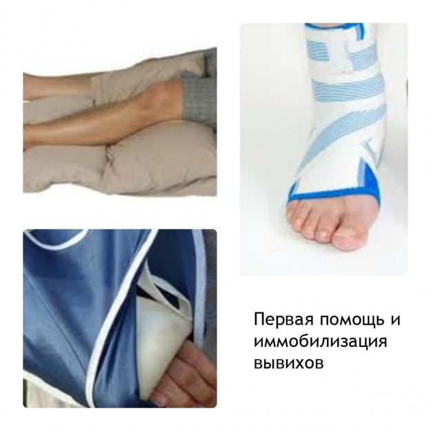 Первая помощь и профессиональная иммобилизация при вывихе сустава