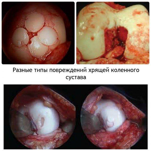 Повреждения хрящей коленного сустава