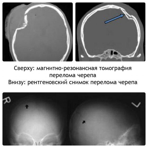 Снимки перелома черепа