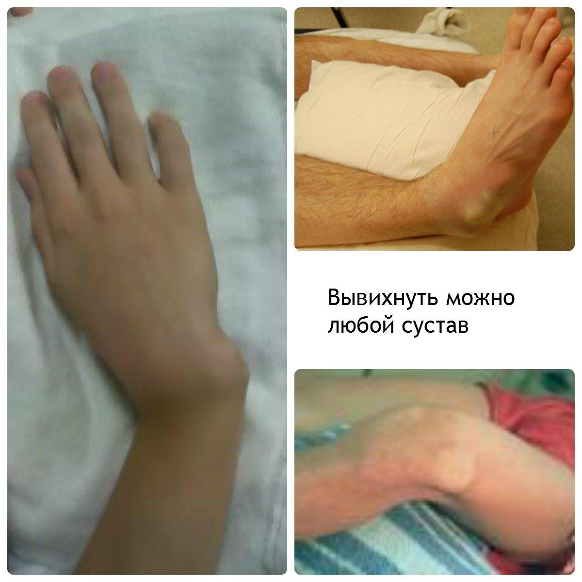 Вывихнуть сустав перелом сустава ноги