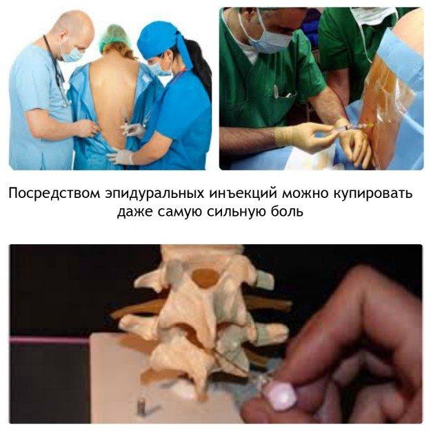 Эпидуральная инъекция
