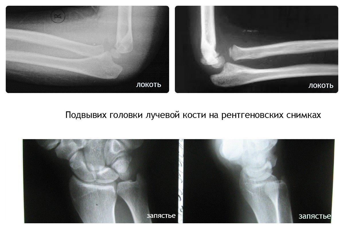 Тазобедренный сустав: Остеоходнропатия головки бедренной кости