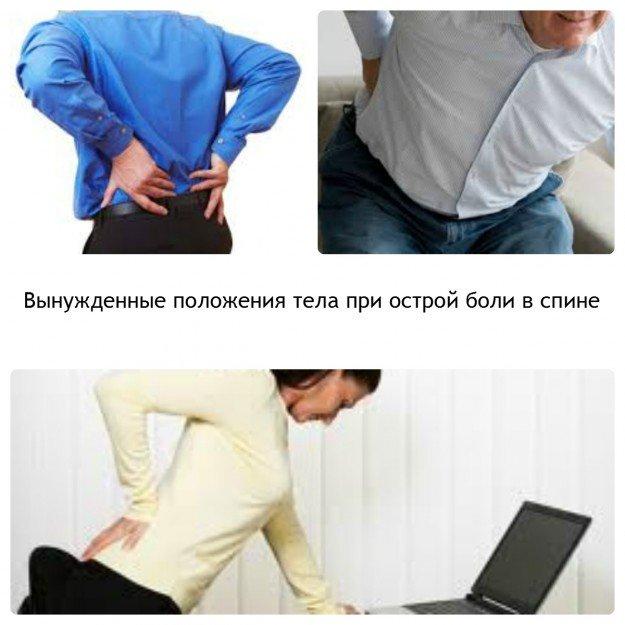 В таких позах вынуждены находиться люди, когда у них случается приступ острой боли в спине