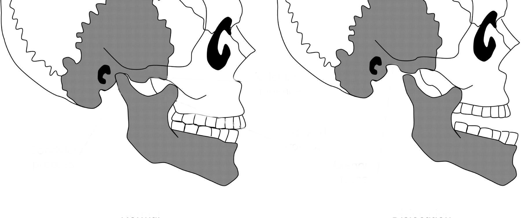 tmj-anatomy-pdf-i6
