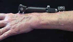 Как лечить псориаз на ногтях ног в домашних условиях