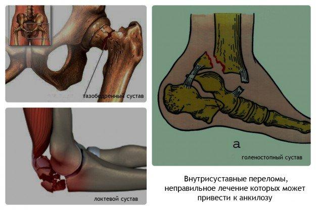 Внутрисуставные переломы