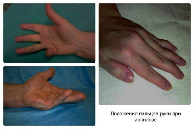 Анкилоз пальцев рук