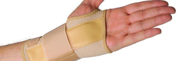 Хирургическое лечение перелома лучевой кости со смещением, на ...