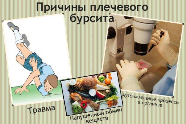 Некоторые причины плечевого бурсита: нарушенный обмен веществ, травма, аутоиммунные процессы в организе