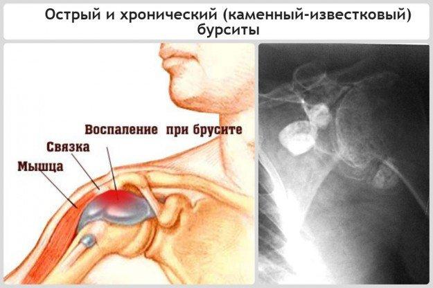 Острый и хронический (каменный-известковый) бурситы