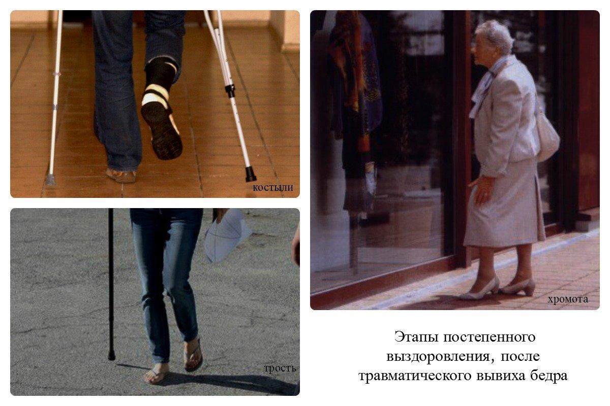 Инвалидность после эндопротезирования тазобедренных суставов
