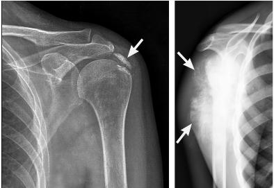 Бурсит плечевого сустава: симптомы, причины, лечение ...