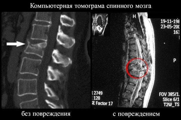 Компьютерная томограма без повреждения и с повреждением спинного мозга