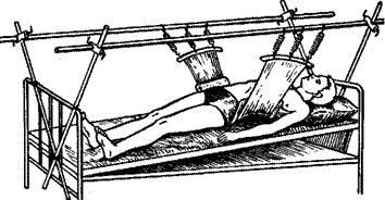 лечение перелома позвоночника в гамаке