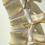 Переломы позвоночника: лечение и реабилитация