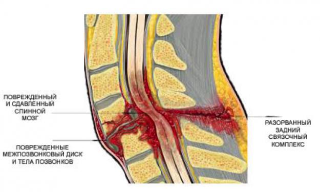 повреждение спинного мозга при переломе