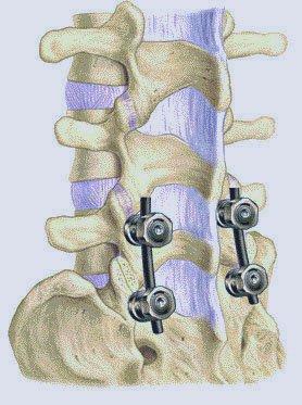внешний вид позвоночного столба после операции