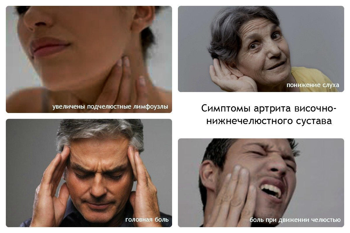 как вылечить артрит челюстного сустава