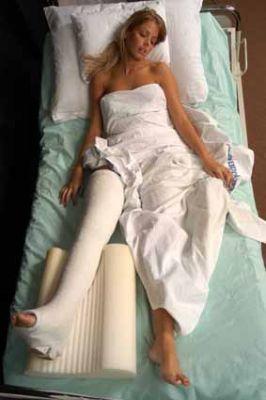 Больной с переломом шейки бедра