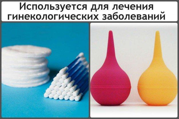 Лечение гинекологических заболеваний
