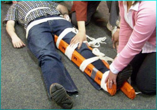 Первая помощь при переломе шейки бедра