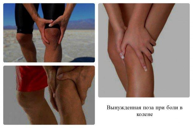 При боли в колене, все, инстинктивно, принимают одинаковое положение