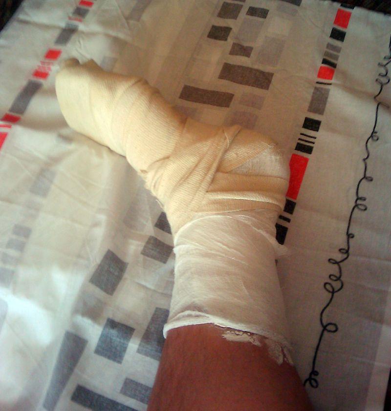 сломанная нога фото в гипсе