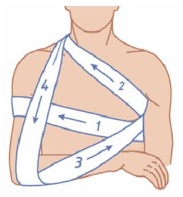Повязка дезо на плечевой сустав