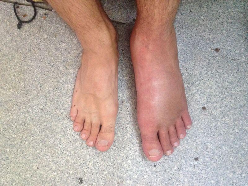 Снятие отёка после перелома ноги или руки (лодыжки, кисти и др ...