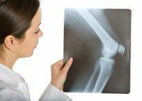 Женщина осматривает рентген