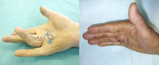 Вид до и после операции