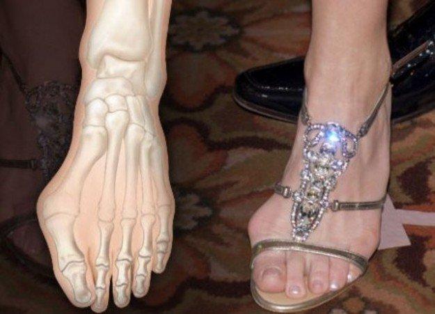 женская нога с искривлённым большим пальцем