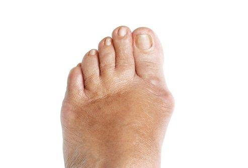 нога с деформированным большим пальцем