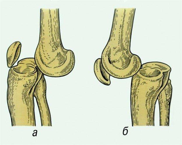 Передний и задний вывих колена