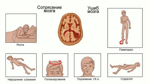 Признаки сотрясения мозга у ребёнка в разном возрасте (первые, ложные и др симптомы)