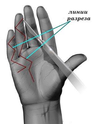 Линии разрезов при проведении операции