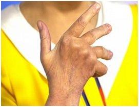 человек сгибает пальцы на руке