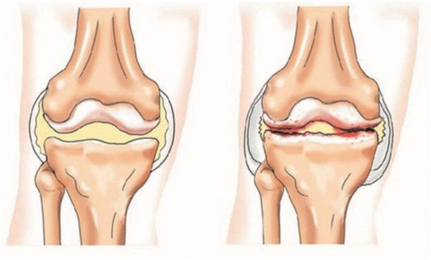 Разница в здоровом и больном коленом суставе огромная