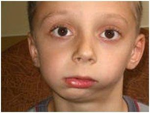 мальчик с вывихом челючти