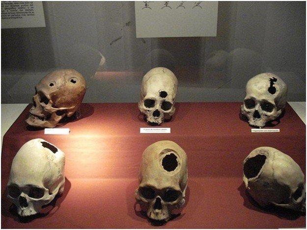 человеческие черепы с дырками
