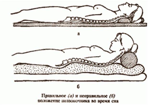 Кровать при остеохондрозе шейного отдела