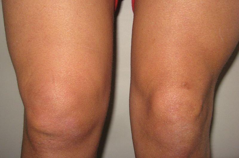 Чувство распирания в коленном суставе что делать дисплазия тазобедренного сустава у детей форум
