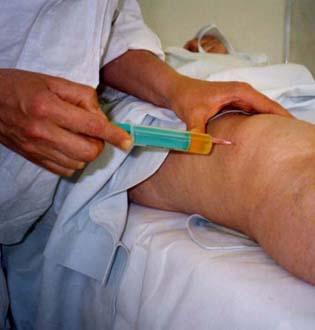 уколы плазмы в суставы отзывы
