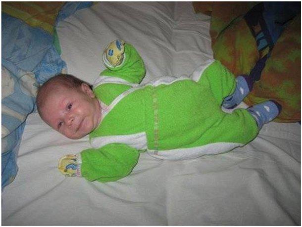 Кривошея у ребенка 1 месяц 10