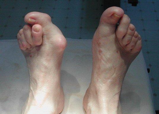 Вывих пальца ноги