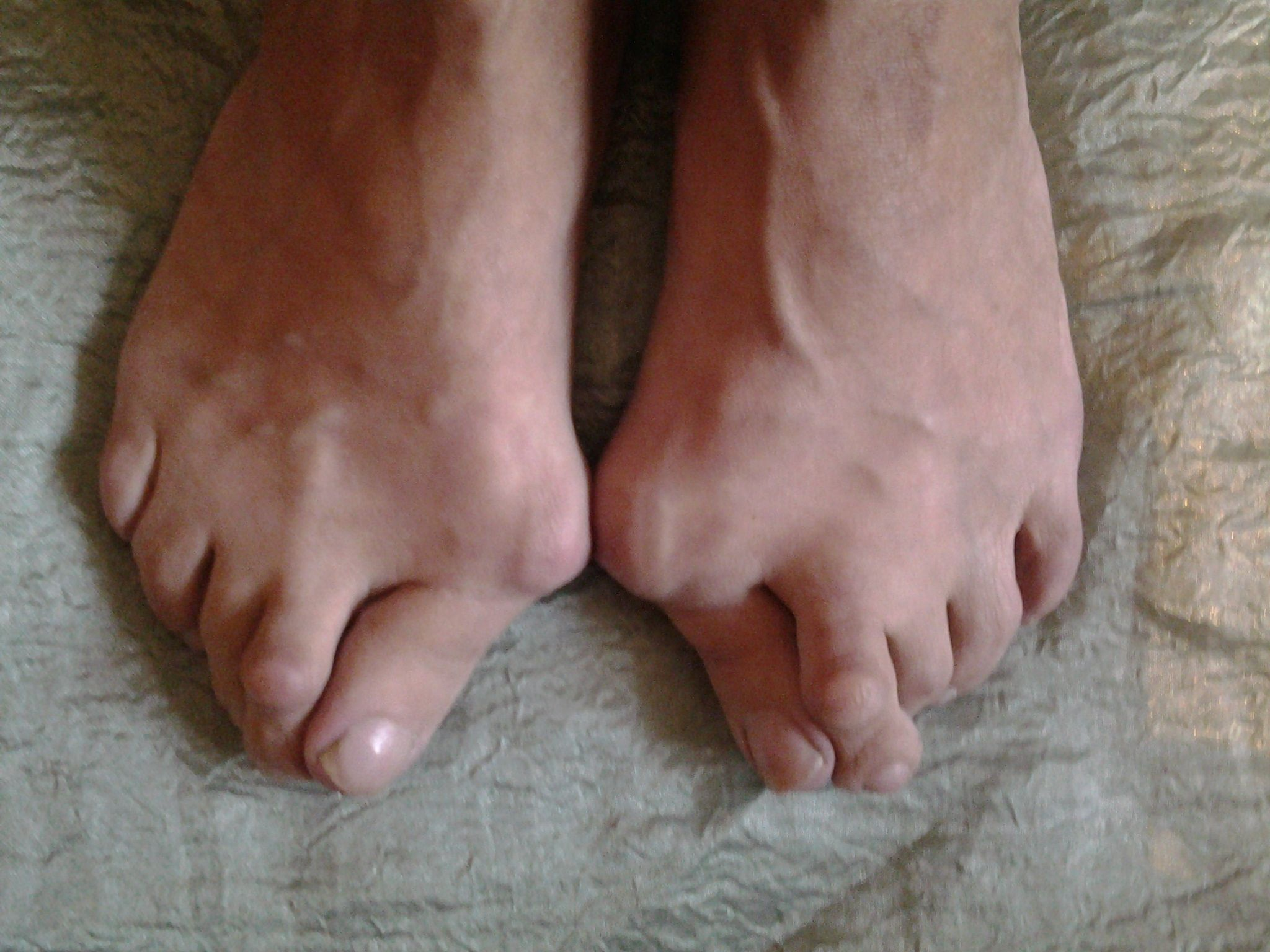 причины возникновения артроза коленного сустава