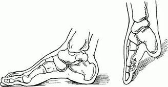 Синдром конской стопы